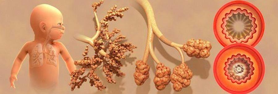 bronchiolite du nourrisson