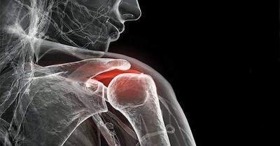 inflammation chronique